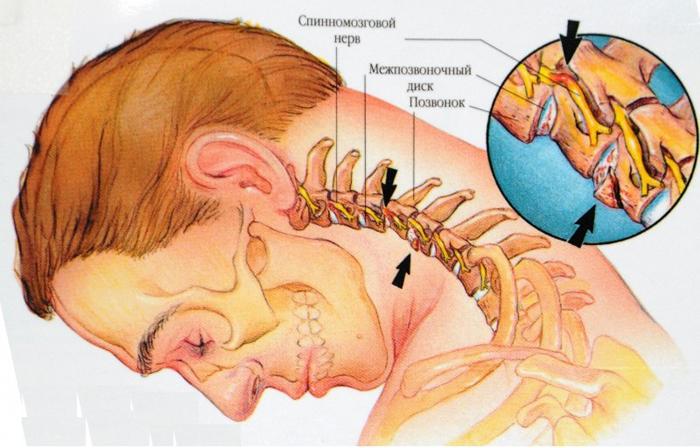 Лечение и профилактика остеохондроза поясничного отдела позвоночника